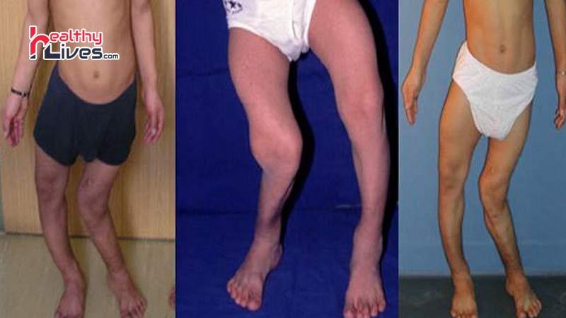 Image result for सूखा रोग (रिकेटस):